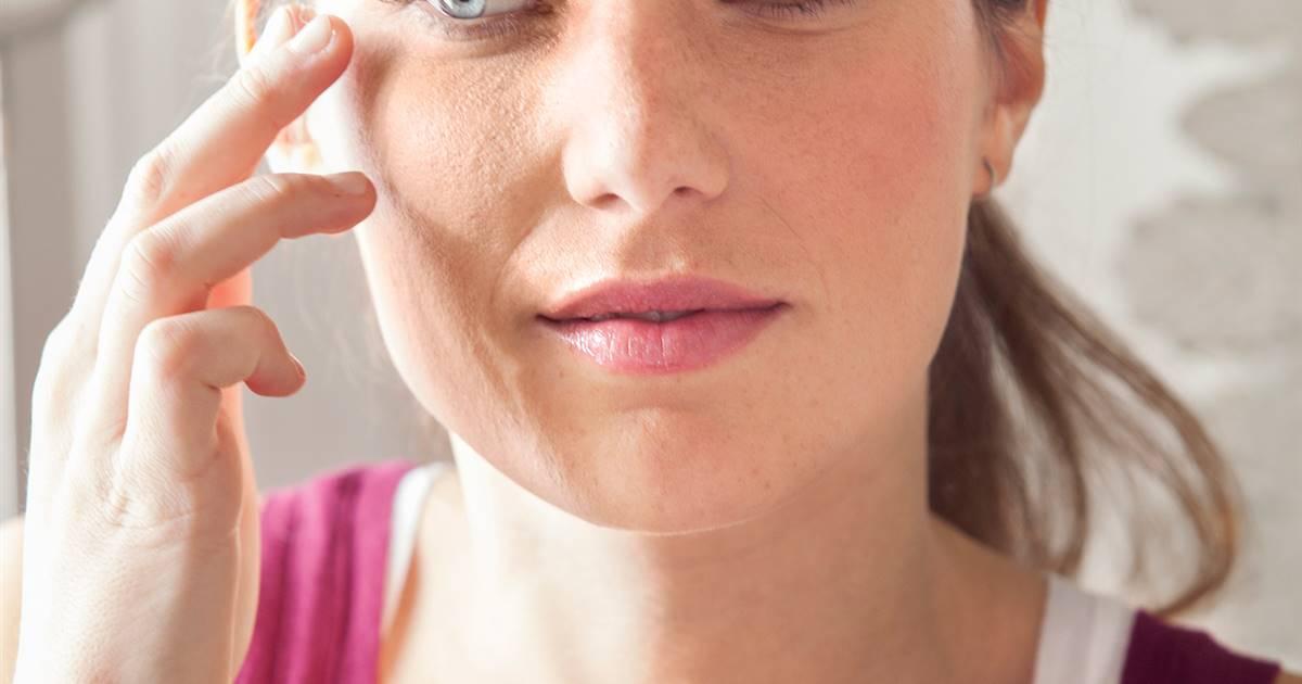 Cuál Es El Mejor Tratamiento Natural Para La Dermatitis Seborreica